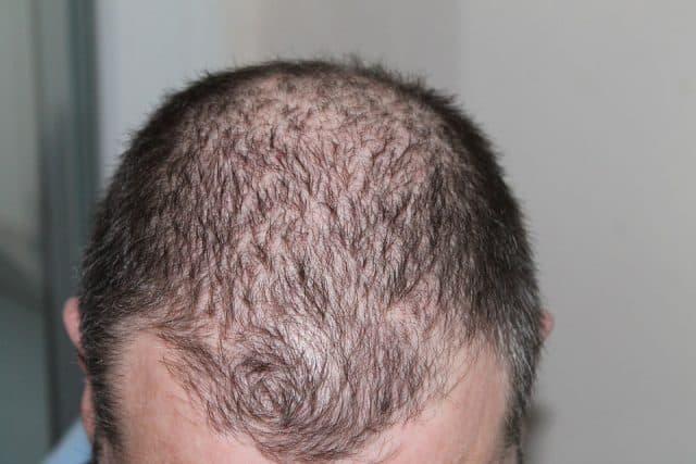 men balding spot