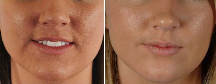 Lady's acne condition of the before and after treatment
