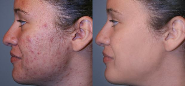 Microderm GLO Diamond Before and After