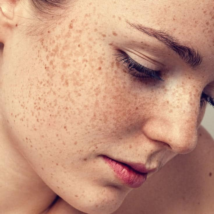 Hyperpigmentation as freckles on the face
