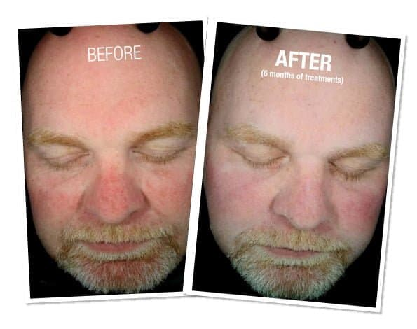 men's before and after on skin's redness