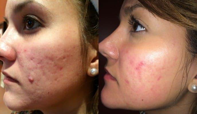 before and after of woman's skin condition (pores and acne)