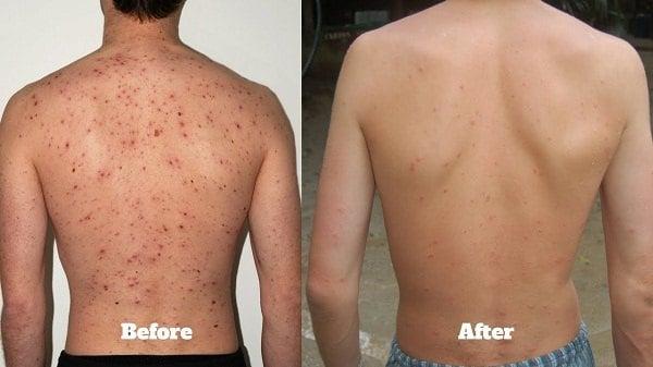 back acne (back acne on a man's back)