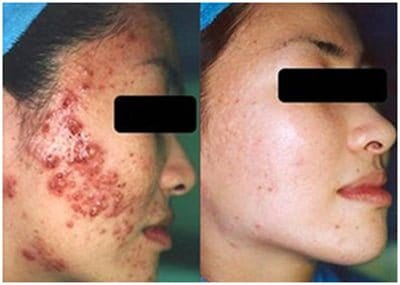 Microdermabrasion Before And After Results Pictures
