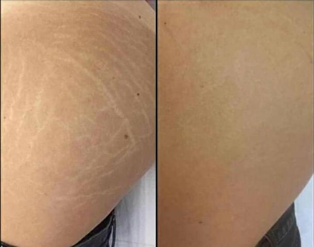effects of products of stretched skin