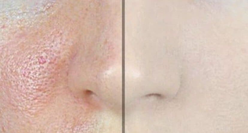 before and after of person's face