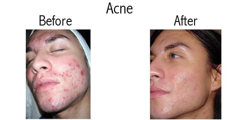 before and after of acne treatment