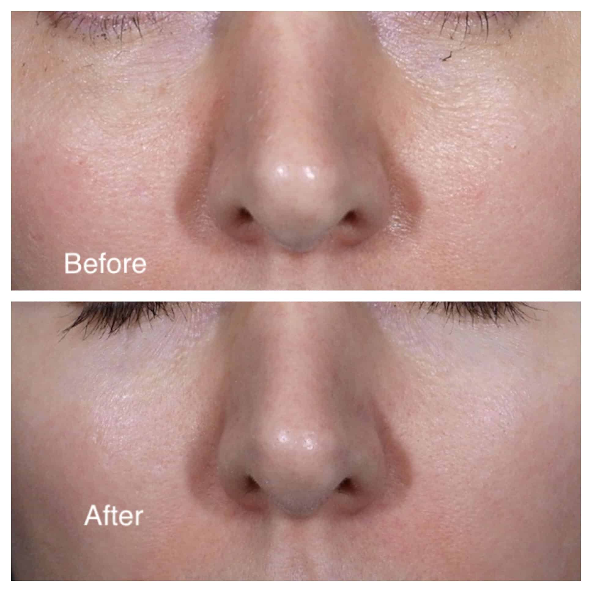 up close before and after of woman's pores