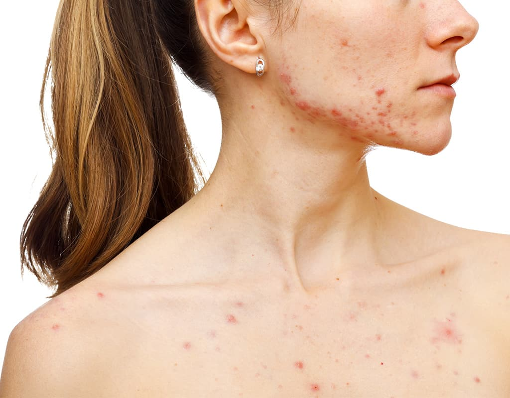 Woman suffering from acne