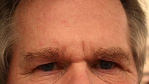 Forehead of a man