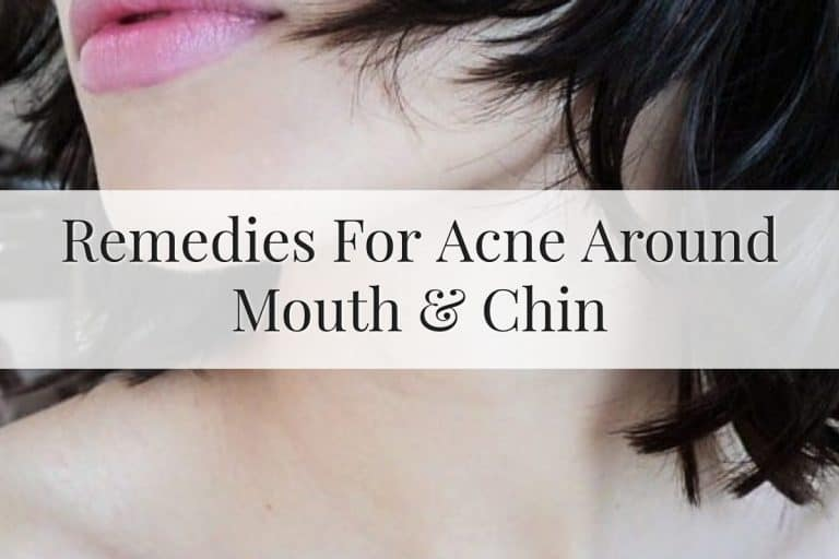 Feature Image for remedies on acne around mouth and chin area