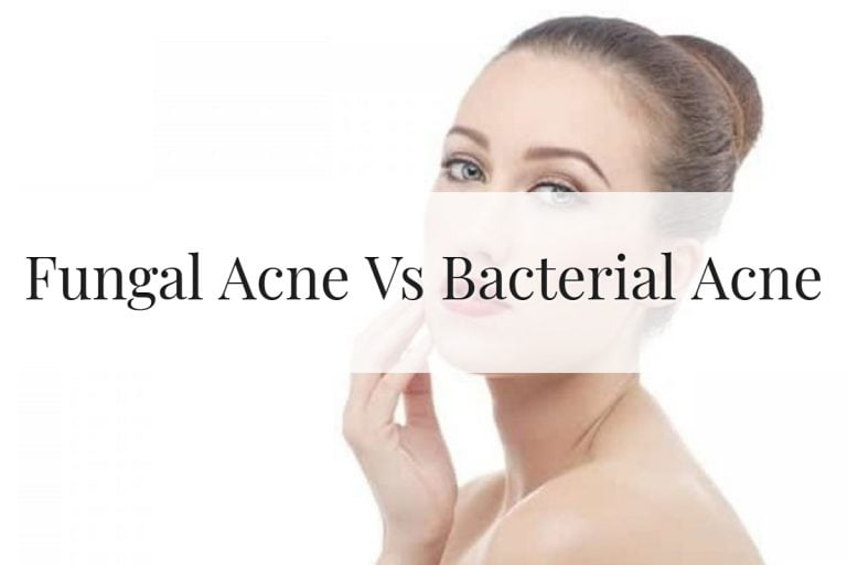Fungal Acne Vs Bacterial Acne Feature Image