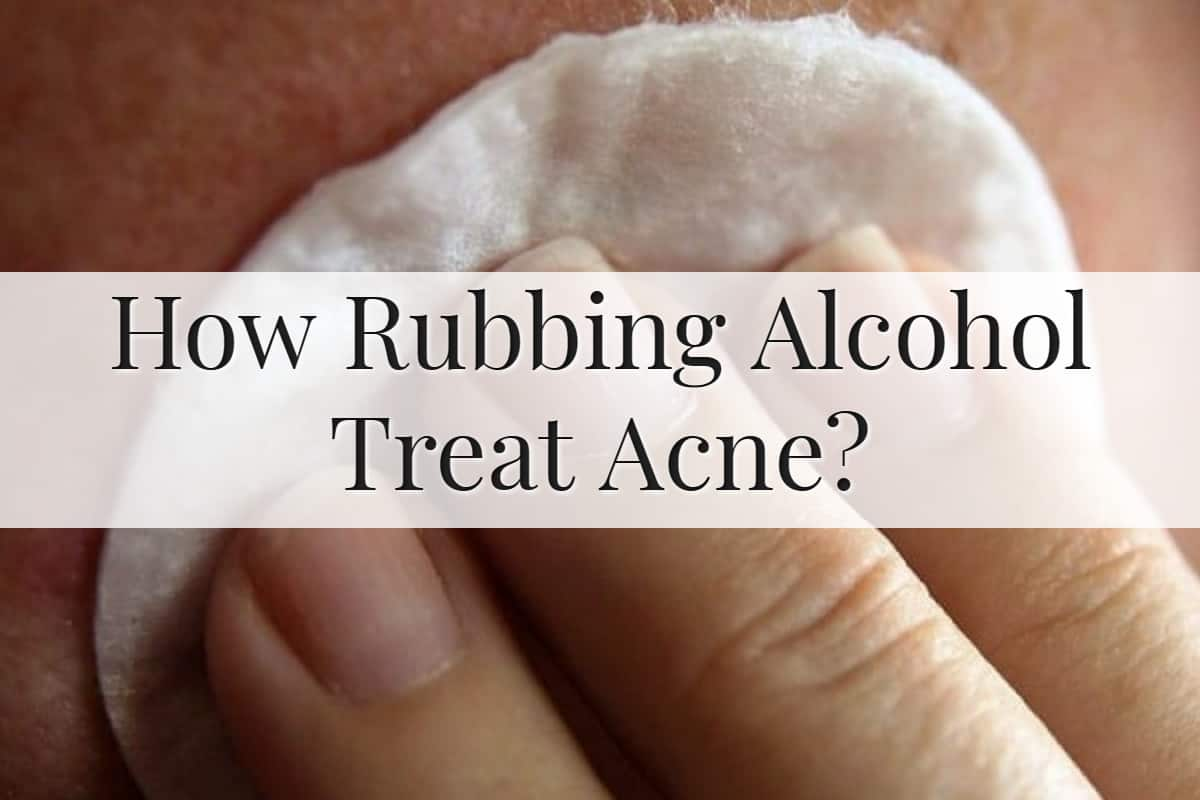 How Rubbing Alcohol Treat Acne Feature Image