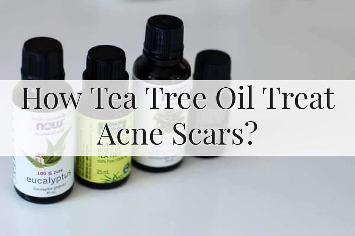 How Tea Tree Oil Treat Acne Scars Feature Image