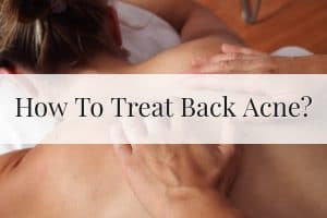 How To Treat Back Acne Featured Image
