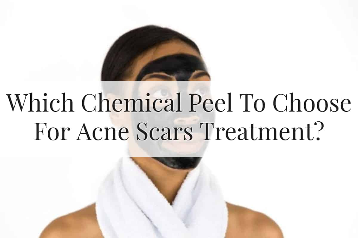 Which Chemical Peel To Choose For Acne Scar Treatment Feature Image