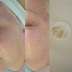 Before and After Derma-planing Procedure