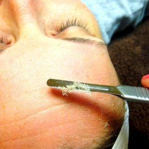 Dermaplaning vs Microdermabrasion - Close Look Of Scrapping Dead Skin