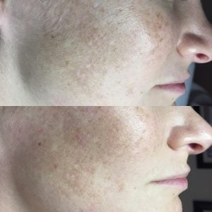 Dermaplaning vs Microdermabrasion - Visibility Lesser Peach Fuzz On Woman's Face After Skin-scrapping Procedure