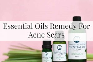 Essential Oils For Acne Scars Feature Image