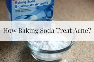 How Baking Soda Treat Acne Feature Image