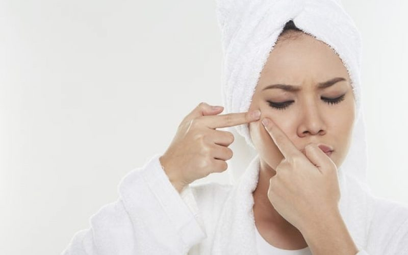 Woman pinching a pimple on her face