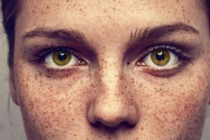 Woman with freckles on her face