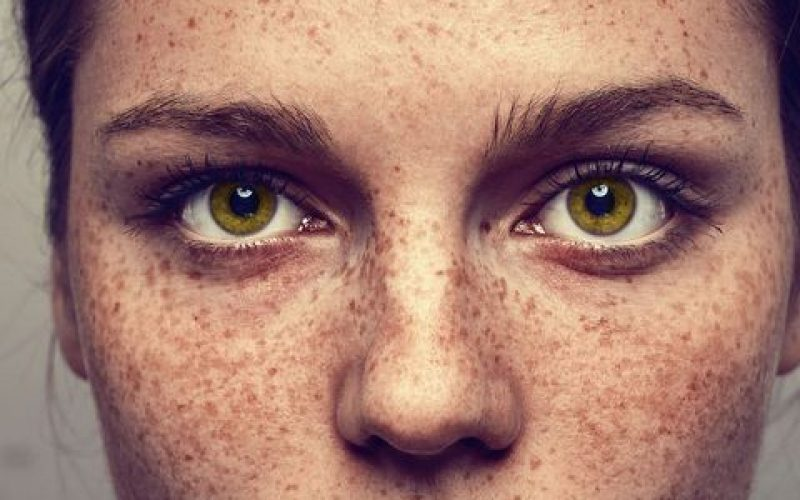 frontal shot of woman with freckles